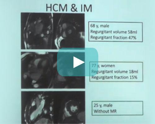 Utilidad de la RNM en la miocardiopatía hipertrófica