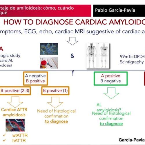 Tándem amiloidosis-edad: cuestiones prácticas. Interesante nota de la Sociedad Española de Cardiología.